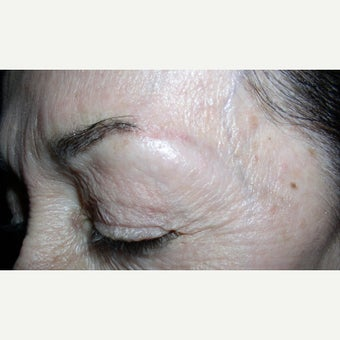 75 and up year old woman treated with Permanent Makeup before 2592825