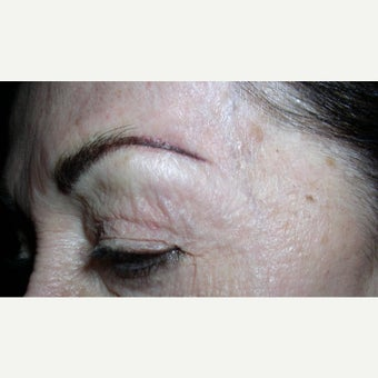 75 and up year old woman treated with Permanent Makeup after 2592825