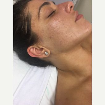 25-34 year old woman treated with Facial after 3630438