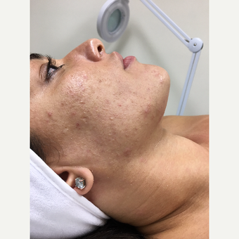 25-34 year old woman treated with Facial before 3630438