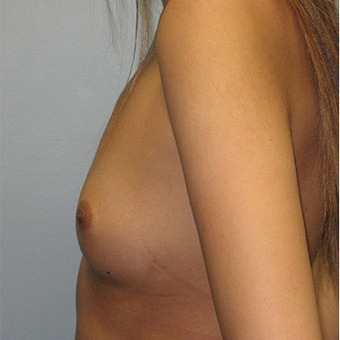 25 year old woman treated with Breast Augmentation before 3468366