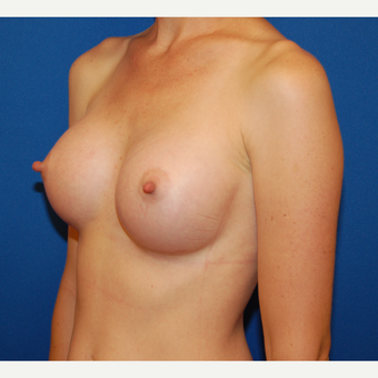 35-44 year old woman treated with Breast Augmentation after 3610217