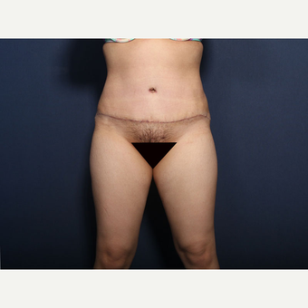 35-44 year old woman treated with Tummy Tuck (view 1 of 2) after 3129166