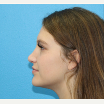 18-24 year old woman treated with Rhinoplasty after 3380249