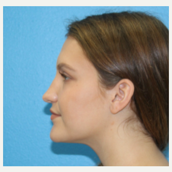 18-24 year old woman treated with Rhinoplasty before 3380249