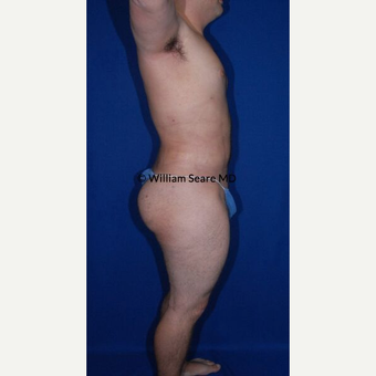 35-44 year old man treated with Liposuction after 3771479