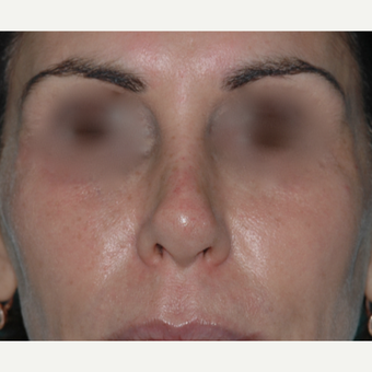 "49 year old woman, past rhinoplasty x 2, wanted something ""non-surgical"" after 3730849"