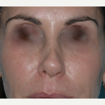 "49 year old woman, past rhinoplasty x 2, wanted something ""non-surgical"" before 3730849"