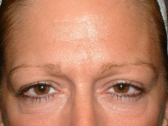 Endoscopic brow lift before 92283