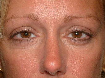 Endoscopic brow lift after 92283