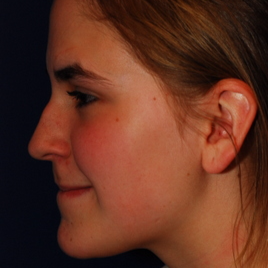 18-24 year old woman treated with Rhinoplasty before 3624275