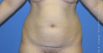 45-54 year old woman treated with Vaser Liposuction before 2969662
