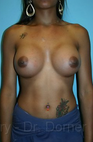 Breast Augmentation after 1059974