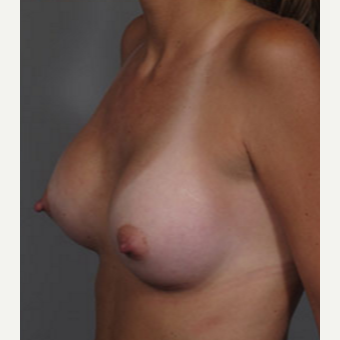 25-34 year old woman treated with Breast Augmentation after 3282347