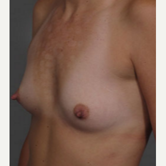 25-34 year old woman treated with Breast Augmentation before 3282347