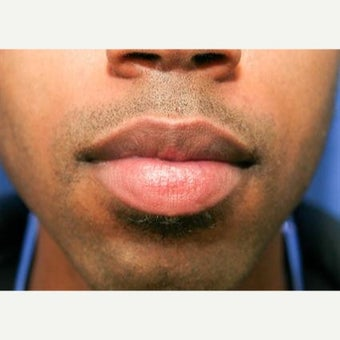 25-34 year old man treated with Lip Reduction before 1863461
