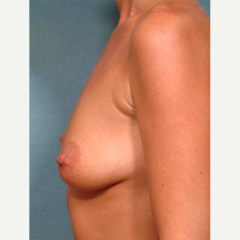 35-44 year old woman treated with Breast Lift with Implants before 2288862