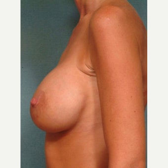 35-44 year old woman treated with Breast Lift with Implants after 2288862