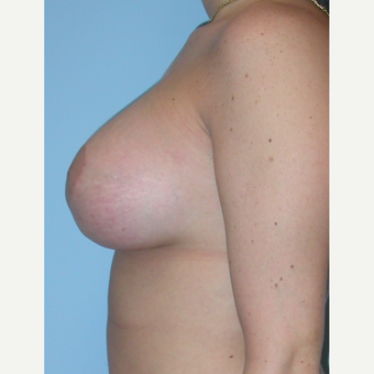 18-24 year old woman treated with Breast Lift after 3076195