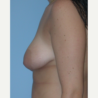 18-24 year old woman treated with Breast Lift before 3076195