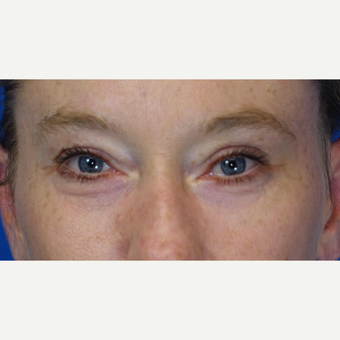 35-44 year old woman treated with Eyelid Surgery after 3304761