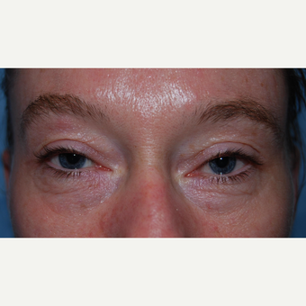 35-44 year old woman treated with Eyelid Surgery before 3304761