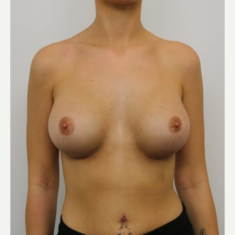 18-24 year old woman treated with Breast Augmentation after 1875948