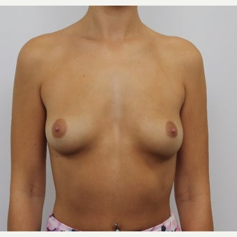 18-24 year old woman treated with Breast Augmentation before 1875948