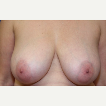 54 year old woman with a Breast Reduction before 3181557