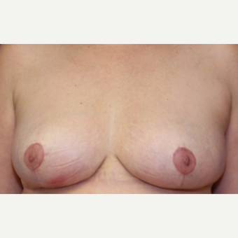 54 year old woman with a Breast Reduction after 3181557