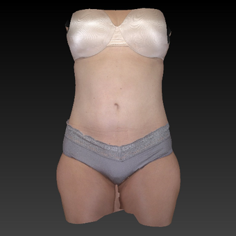 NONCOM 35-44 year old woman treated with Smart Lipo after 3783686