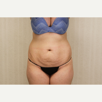 18-24 year old woman treated with Tummy Tuck before 3684710