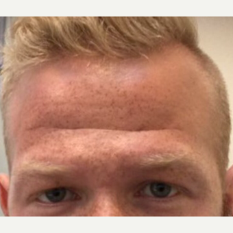 25-34 year old man treated with Botox before 3443879