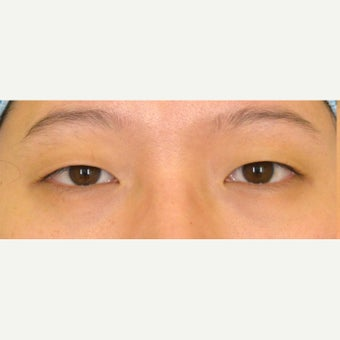 18-24 year old woman treated with Asian Eyelid Surgery and medial epicanthoplasty before 2407507