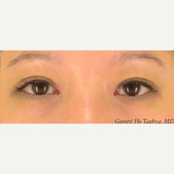 18-24 year old woman treated with Asian Eyelid Surgery and medial epicanthoplasty after 2407507