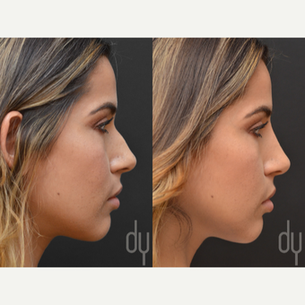 25-34 year old woman treated with Non Surgical Nose Job before 2990854