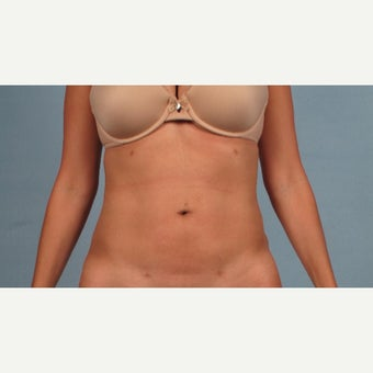 38 year old woman treated with Liposculpture after 2089133