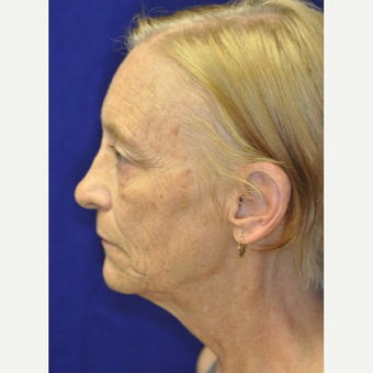 65-74 year old woman treated with Facelift before 3849265