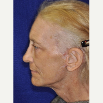 65-74 year old woman treated with Facelift after 3849265