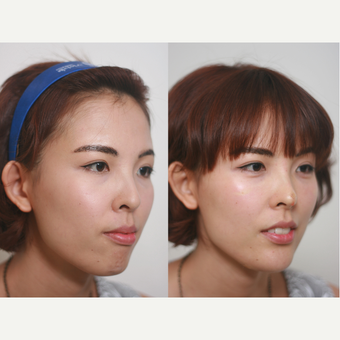 small chin and flat nose, Augmentation by Radiesse filler after 3193494