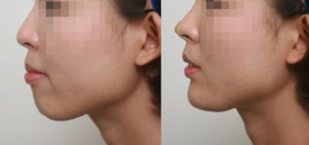 small chin and flat nose, Augmentation by Radiesse filler before 3193494