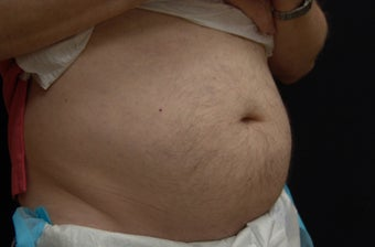 Coolsculpting Male Abdomen before 1063500