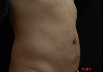 Coolsculpting Male Abdomen after 1063500