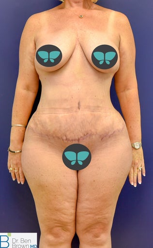 55-64 year old woman treated with Tummy Tuck after 3486855