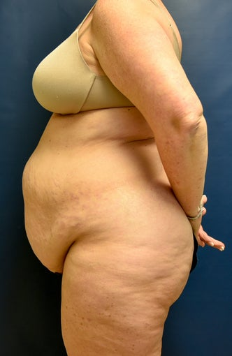 55-64 year old woman treated with Tummy Tuck 3486855