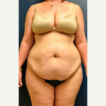 55-64 year old woman treated with Tummy Tuck before 3486855