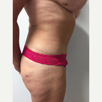 52 year old woman treated with Tummy Tuck and Liposuction after 3676634