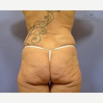 45-54 year old woman treated with Butt Implants before 3391361