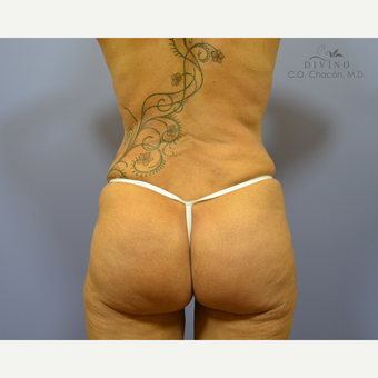 45-54 year old woman treated with Butt Implants after 3391361