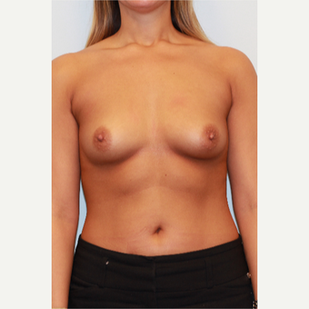 18-24 year old woman treated with Breast Implants before 3026863